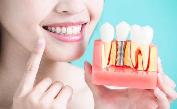 dental implant, orthodontic treatment